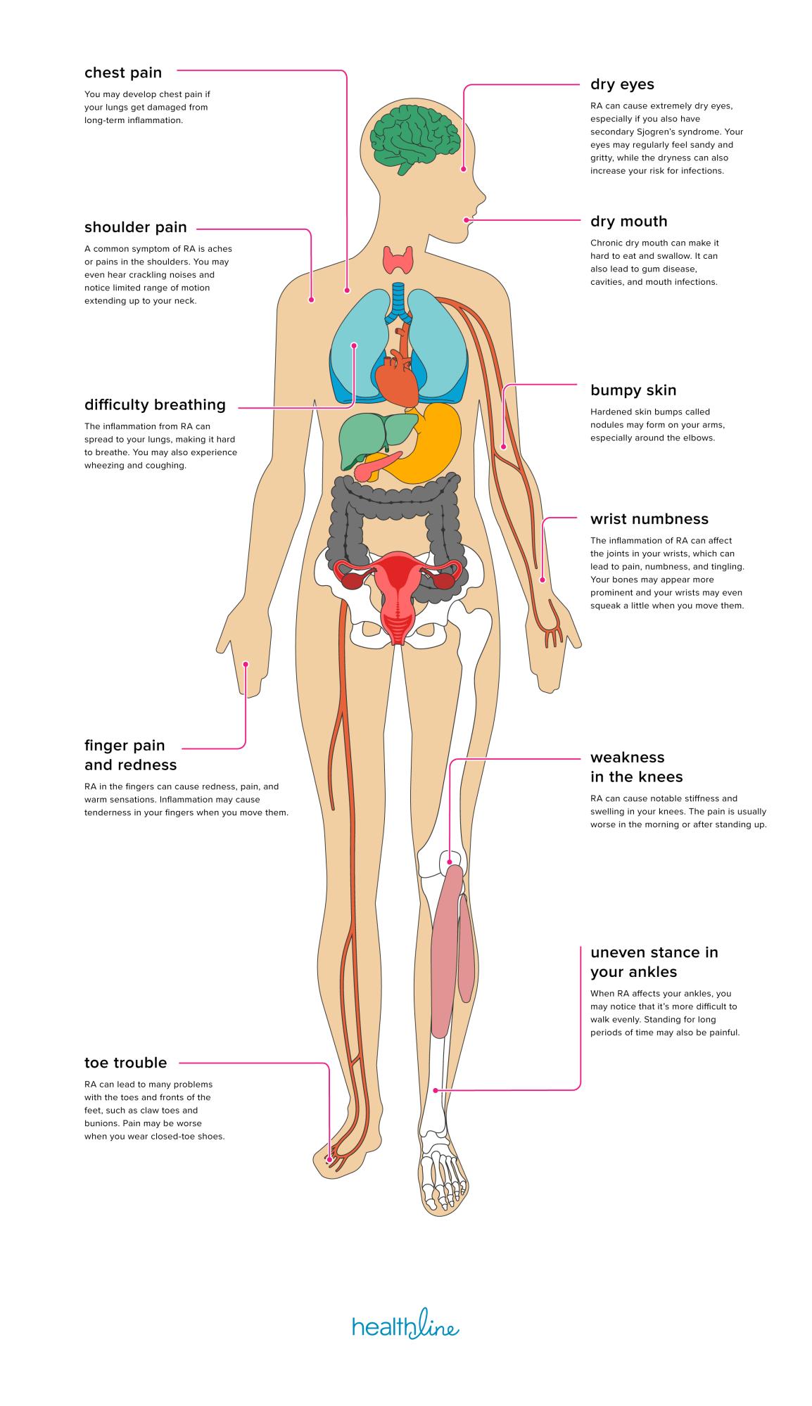 kenőcs múmiával ízületi fájdalmak kezelésére a tejeslányok kezének ízületei