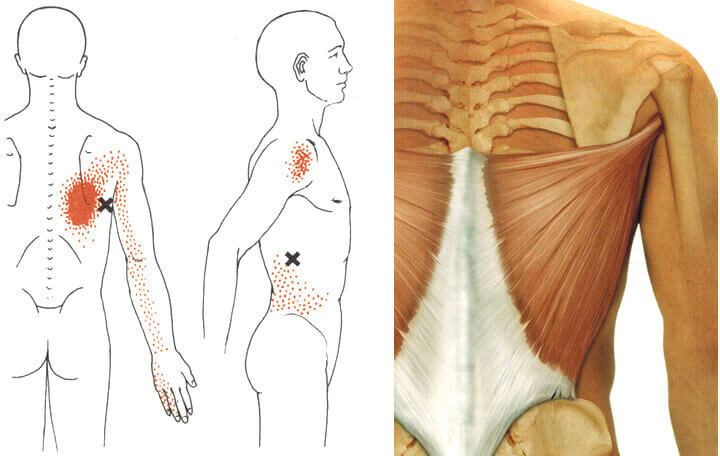 a csontok és ízületek gerinc deformációjának görbülete osteochondrosis)