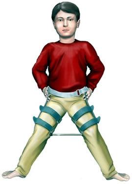a csípőízület deformáló artrózisának stádiuma)