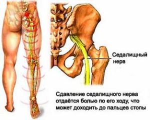 megcsípődött ideg kezelése a csípőízületben)