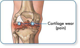 térdízületi fájdalom szindróma