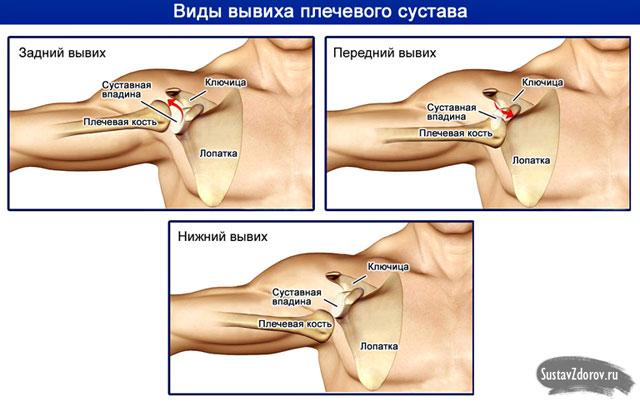 a vállízület anatómiai nyakának törése