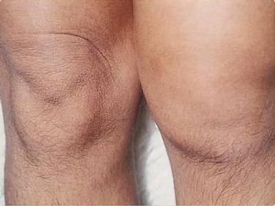 meniszcus káros térd tünetek áttekintés