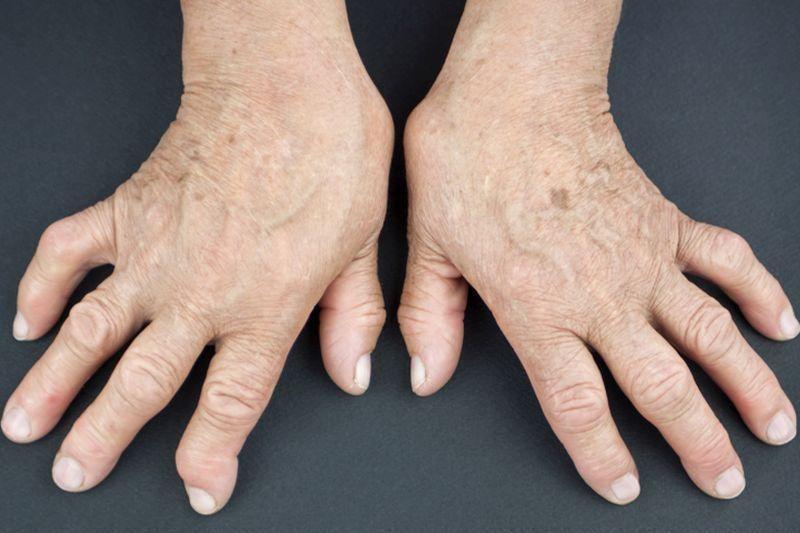 zsibbadás rheumatoid arthritisben)