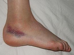 a bokaízület duzzanata kezelést okoz
