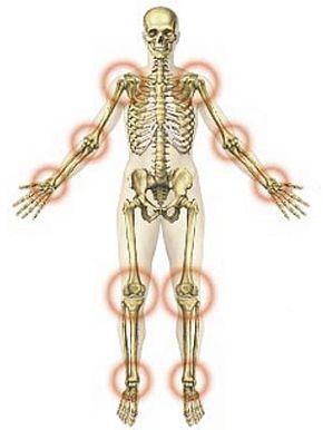 ízületi gyulladás hogyan kezelhető, és ki gyógyítja)
