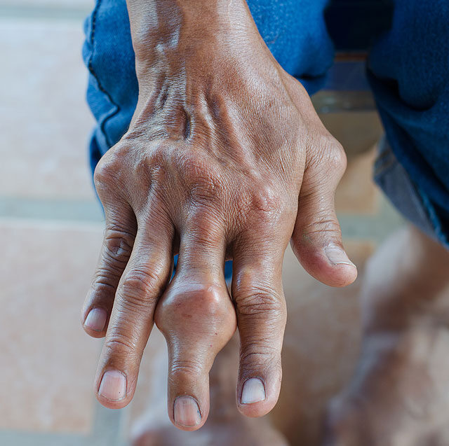 kézízületi injekciók kezelése belső térdízület fájdalma