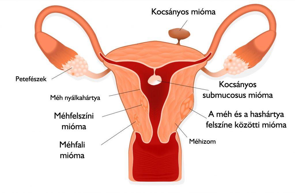 méh térdízületi kezelés)