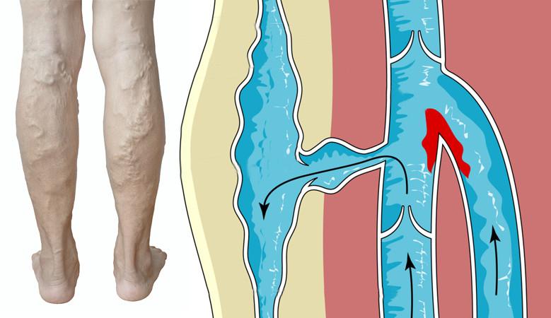 az artrózis antibiotikumainak kezelése