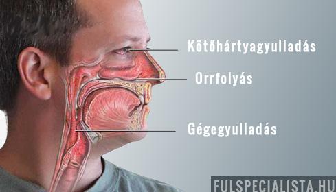 az arccsontok ízületi gyulladásának kezelése