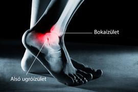 a boka ínszalagok károsodásának tünetei