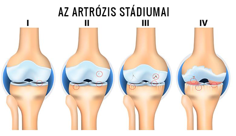 a 2. fokú artrózis kezelése)