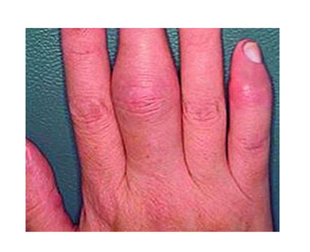 a kéz duzzanata ízületi gyulladással futó fájdalom a csípőben