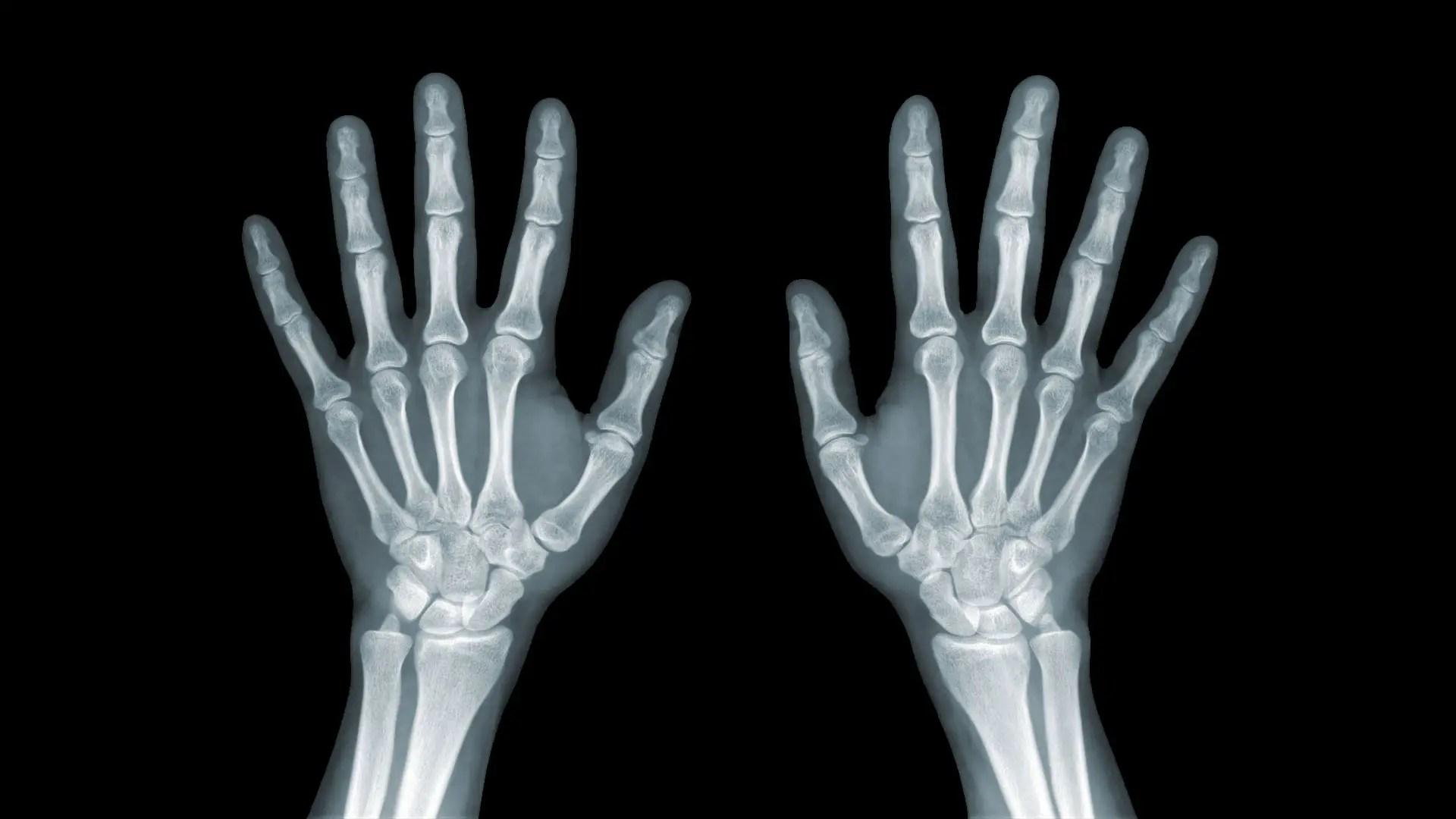 hogyan kezeljük a carpalis artritist)