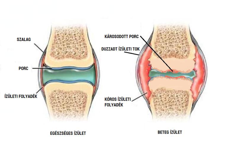gyógyszer a metatarsofalangealis ízület artrózisához fájdalom a könyökben fekve