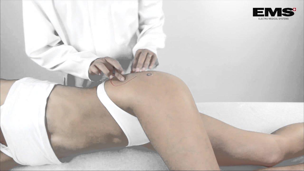 csípőízület bursitis kezelése)
