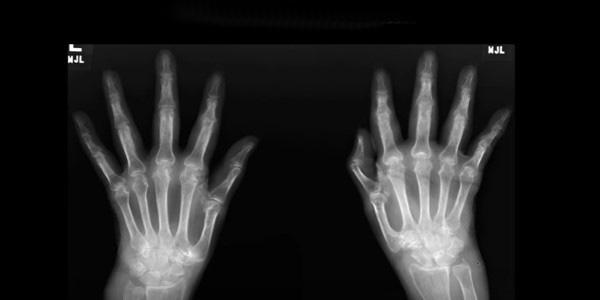 az ujjak falának ízületei fájnak