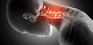 csontritkulás elleni gyógyszer ízületi fájdalmak, artrózis esetén