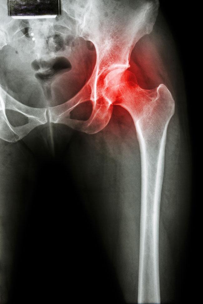 a csípőízület kezelésének coxarthrosis jelei