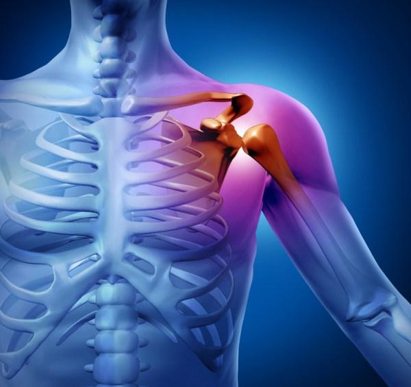 csillapítja a vállízületi fájdalmat aclast ízületi gyógyszer