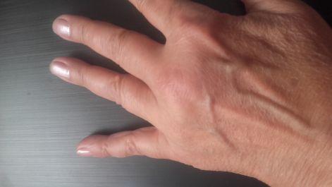panzió ház artrózis kezelése