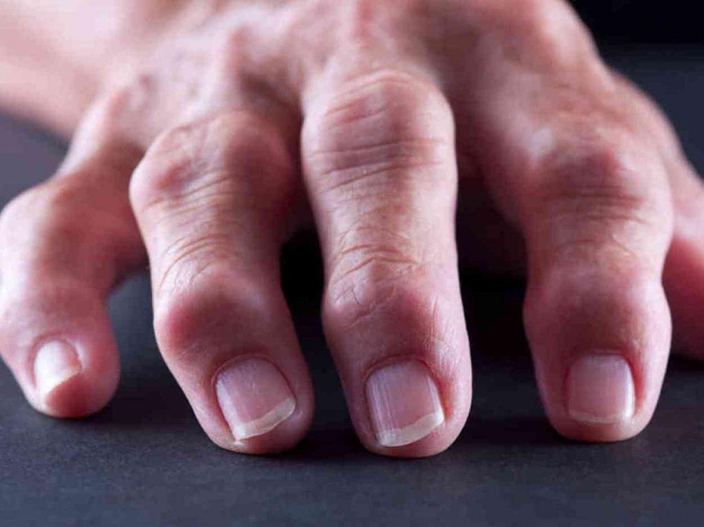 az ujjak ízületei zsibbadtak