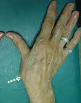fájdalom a hüvelykujj bal oldali ízületében