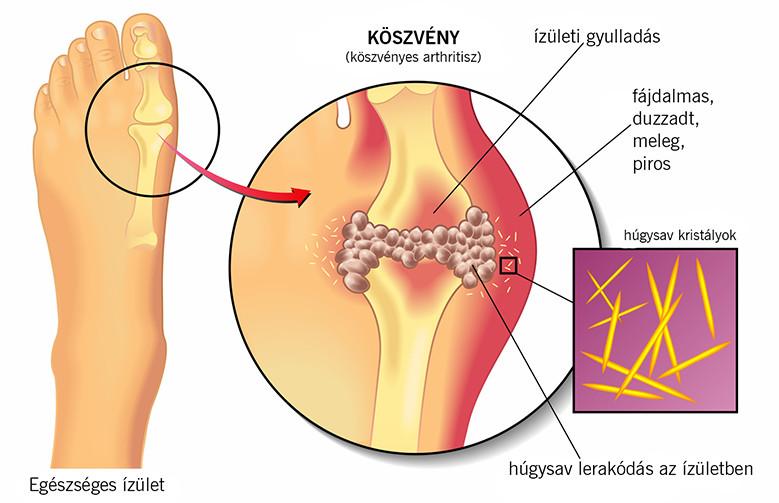 köszvény artrózisos kezelése porcnövelő gyógyszerek