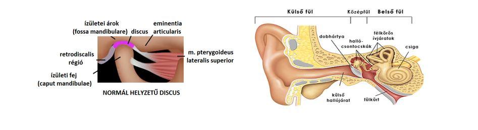 fülzúgás és ízületi fájdalom sportos térdbetegség