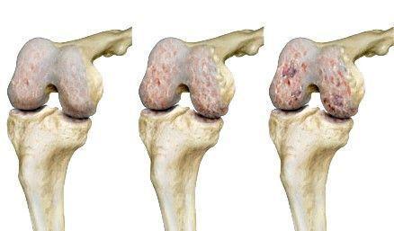 miért fáj a kézízületek és a csontok)