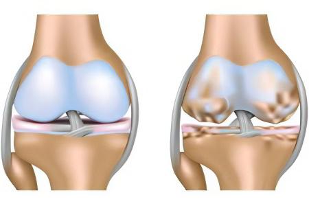 правосторонний гонартроз ízületi fájdalom a karboplatin után