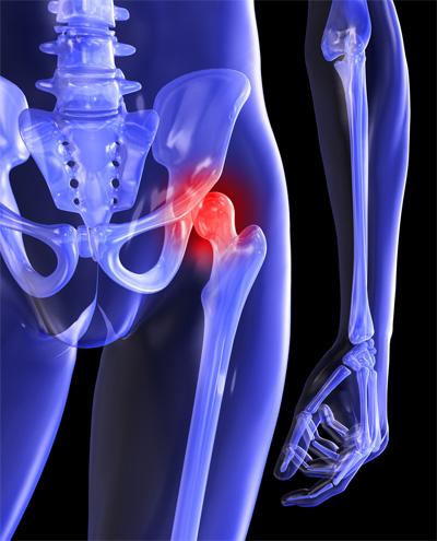csípőfájdalom tünetei és kezelése)