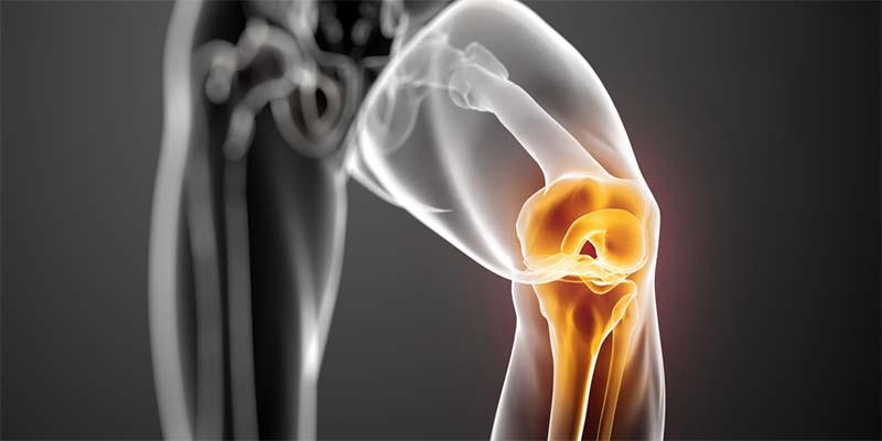 a térd oldalsó ízületeinek károsodása hányinger és ízületi fájdalom