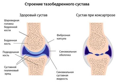 csípőízület artrózisának súlyosbodása