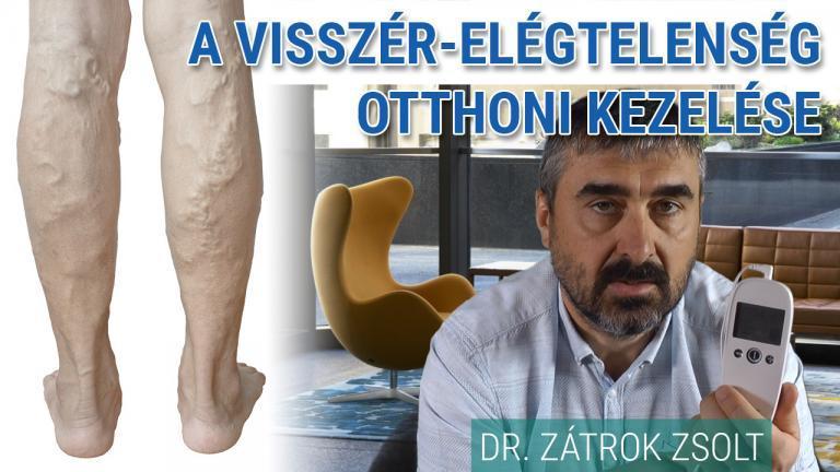 hogyan lehet kezelni a láb ízületének gyulladását közös javító tabletták