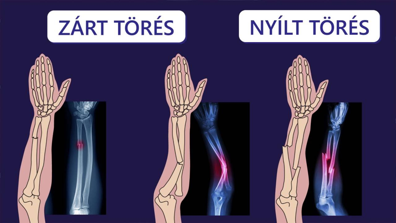 csontok és ízületek zárt sérülései)