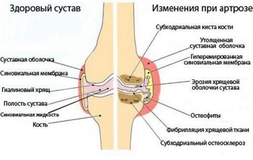 kezelés térd hidrogén-peroxid-artrózisával