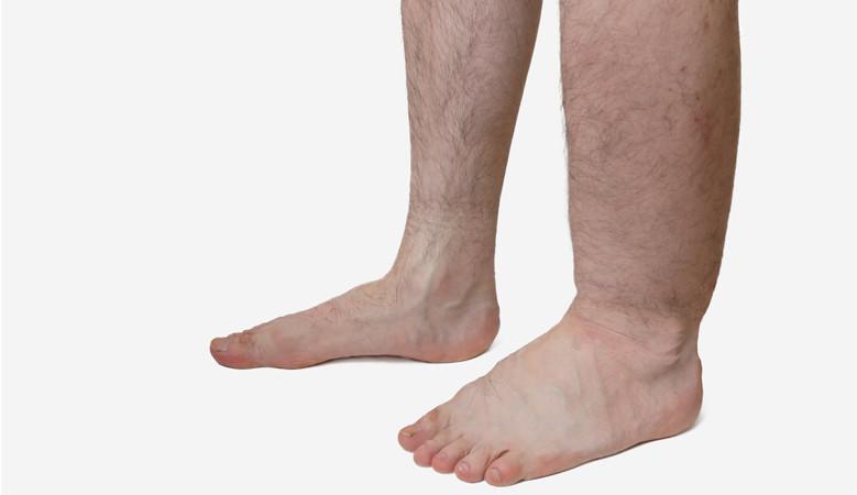 a láb porcának gyulladása