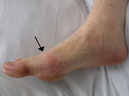 a láb duzzanata az ízületi gyulladással