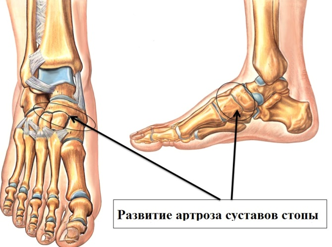 csontok és ízületek degeneratív-disztrofikus betegségei)