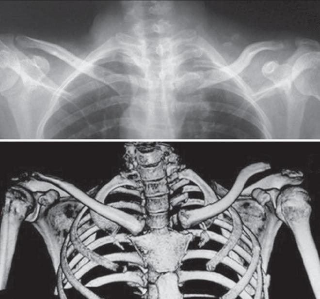 clavicularis-acromialis ízületi arthrosis