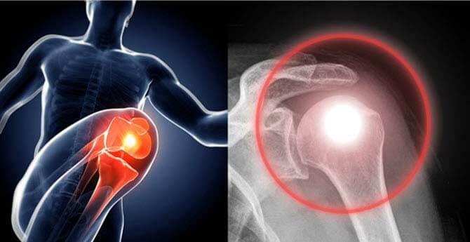 a térd tüneteinek akut artrózisa távolítsa el az ízület gyulladását