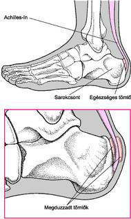 a lábak ízületeinek károsodása)