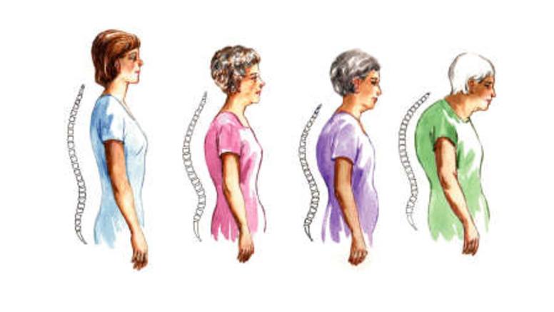 befolyásolhatja az oszteoporózis az összes ízületet)