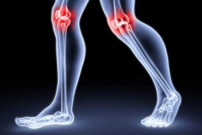 Az osteoarthritis deformálása - Frissítő
