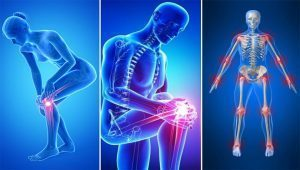 hogyan lehet kiküszöbölni az izom- és ízületi fájdalmakat)