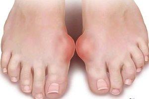 tömjén az ízületek kezelésében váll artritisz kezelésére szolgáló gyógyszerek