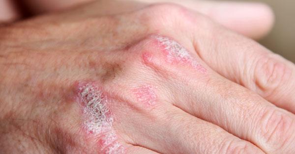 a kezek ízületei nagyon fájnak