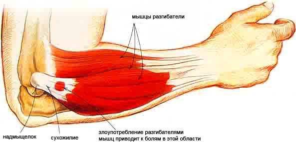 a vállízület diffúz artrózisa kötőszöveti betegség jelei