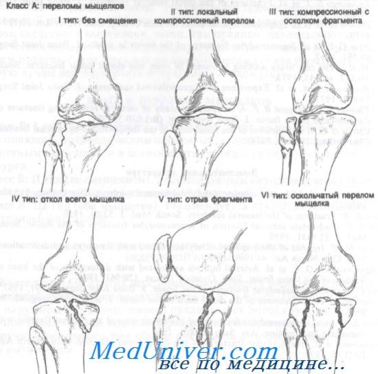 a térdízület károsodása és a láb diszlokációja